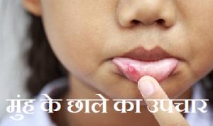Muh ke chale ka Karan Lakshan gharelu nuskhe upay ilaj in hindi